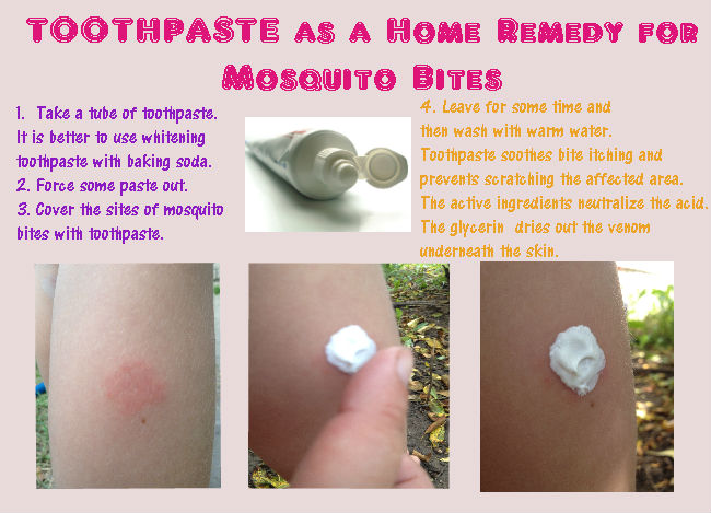 Toothpaste to treat mosquito bites