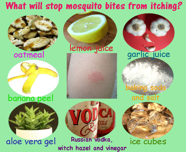 What will stop mosquito bites from itching