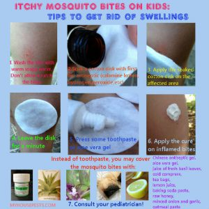 How to treat mosquito bites on kids