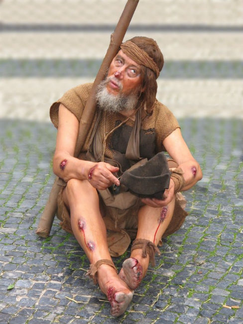 Beggar infected with one of the bacterial rat-borne diseases